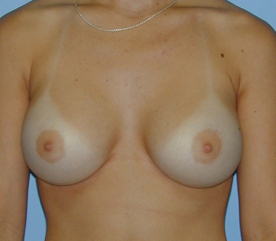 saline breast implants photo gallery laguna beach orange