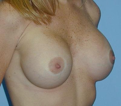 34 b cup boob