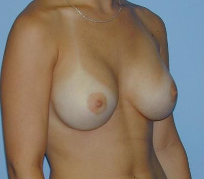 34c breast size nude